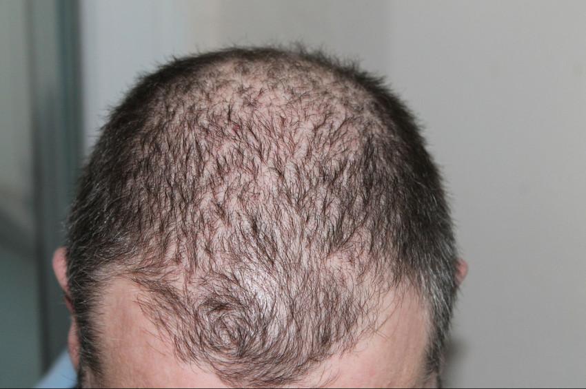Saç dökülmesini  tetikleyen  ve önleyen gıdalar