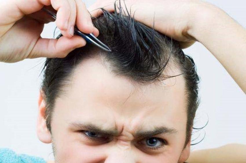Tikotilomani: Saç ve kıl koparma hastalığı