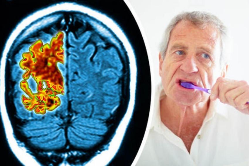 Diş eti hastalığı ile Alzheimer ilişkisi araştırılıyor
