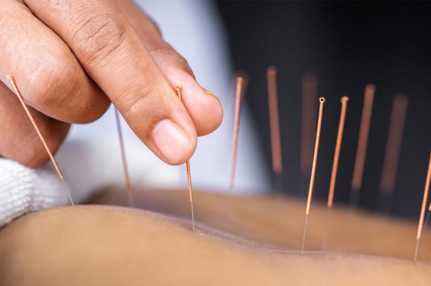 Akupunktur 100'ün üzerinde derde deva