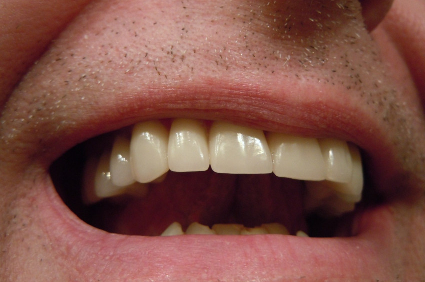 Koronavirüs sürecinde dişi ağrıyanlar ne yapılmalı?