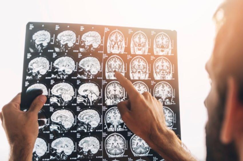 Beyin tümörü konusunda bilinmesi gereken tıbbi gerçekler