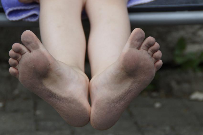 Çocuklarda topuk ağrısı ihmale gelmez