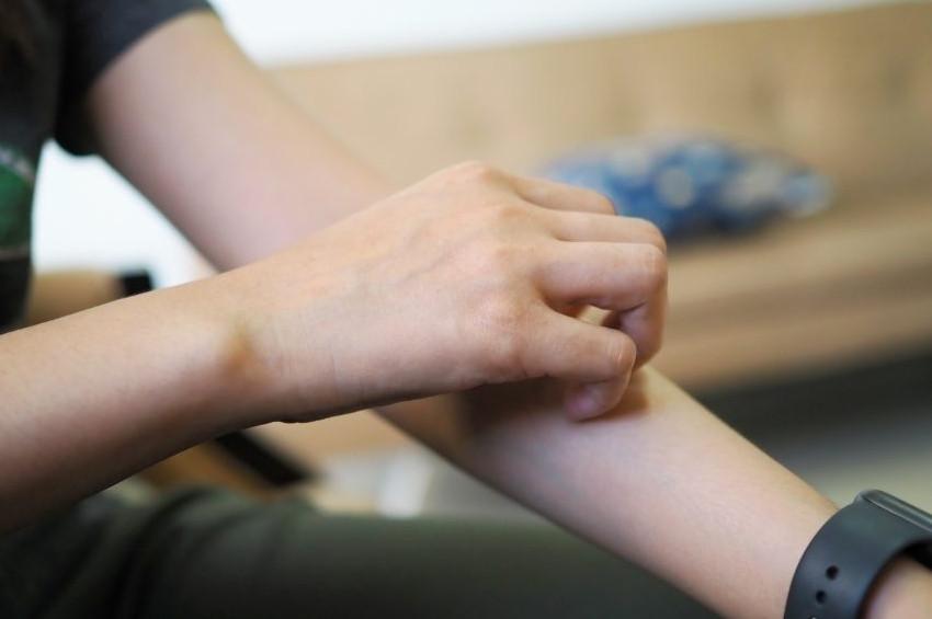 Egzama rahatsızlığı olanlar nasıl beslenmeli, nasıl giyinmeli?